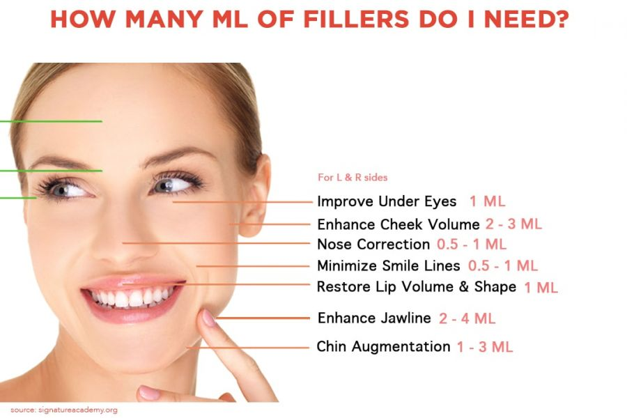 Dibawah jawaban _how many ml of filler do i need_