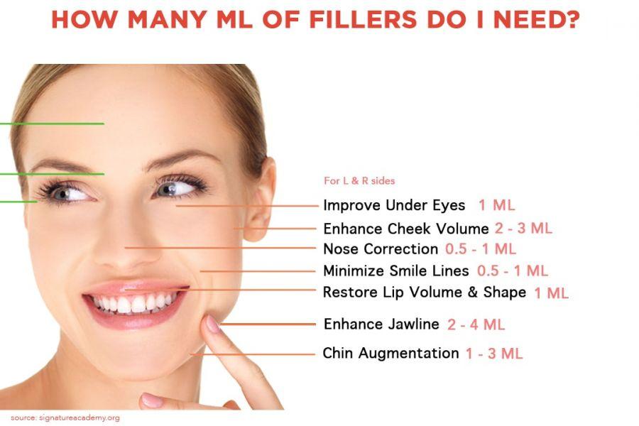 Dibawah jawaban _how many ml of filler do i need_