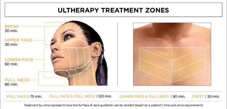 Ultherapy Treatment Zones